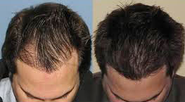 hair transplant cost in jaipur