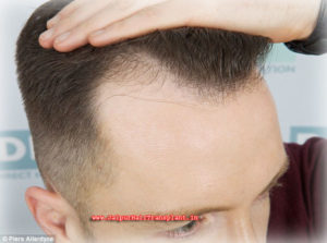 Hair transplant center in Jaipur