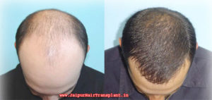 Hair transplantation in jaipur